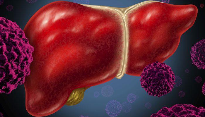 Ung thư gan di căn có thể gây ra những bệnh gì?