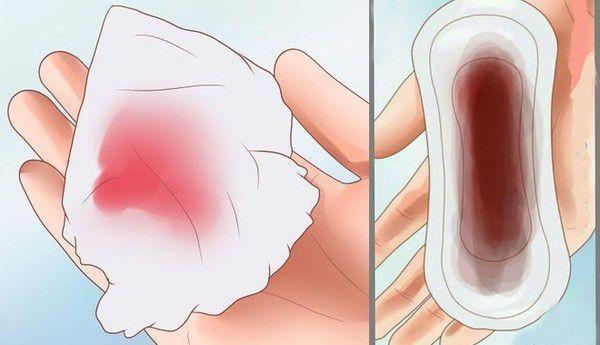 Chảy máu tử cung là gì