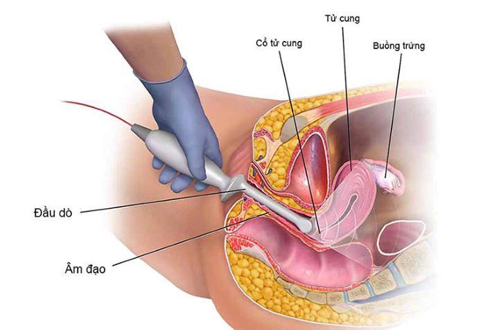 Chế độ ăn cho khối u túi noãn hoàng âm hộ