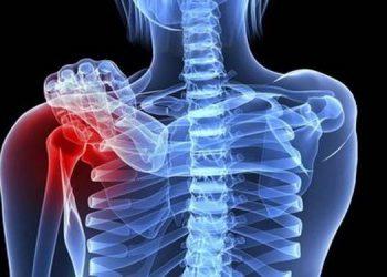 Chondrosarcoma trung tâm là gì? Những nguyên nhân gây bệnh và cách điều trị