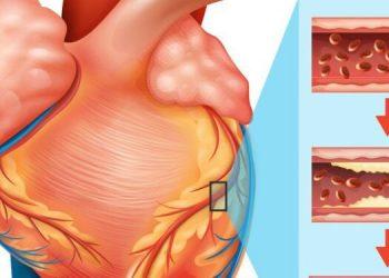 Chứng phình động mạch là gì? Tất tần tật các thông tin về nó