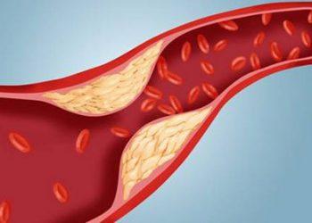 Chứng phình động mạch vành là gì? Dấu hiệu, nguyên nhân, cách chữa