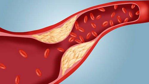 chứng phình động mạch vành