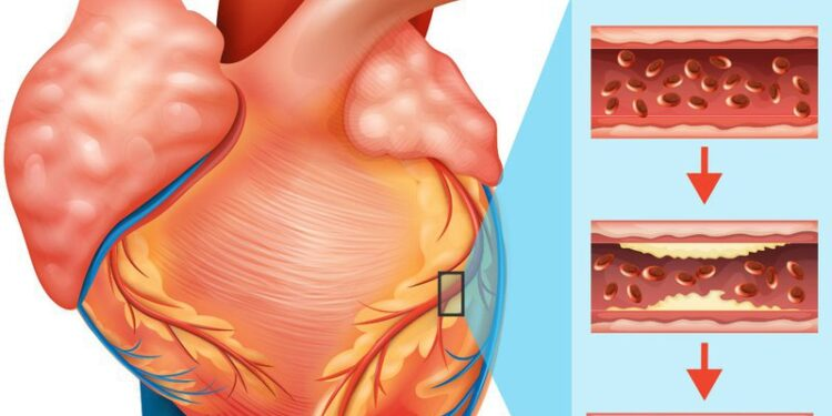 chứng phình động mạch