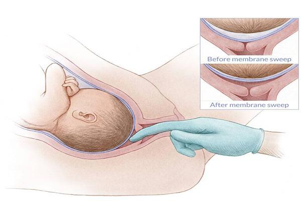Co thắt tử cung là gì