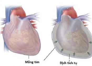 Di căn màng ngoài tim là gì? Nguyên nhân, triệu chứng, cách điều trị