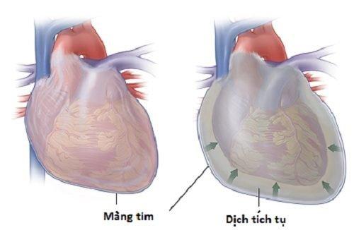 di căn màng ngoài tim