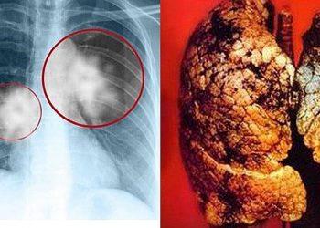 Di căn phổi là gì? Những nguyên nhân và cách điều trị