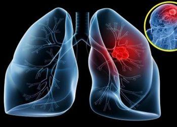 Di căn tim là gì? Những nguyên nhân gây bệnh, cách điều trị hiệu quả nhất