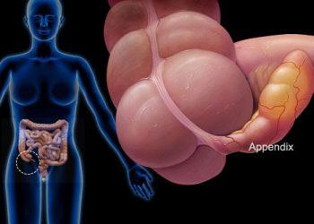 Hội chứng tắc nghẽn vùng chậu là gì? Nguyên nhân và hậu quả