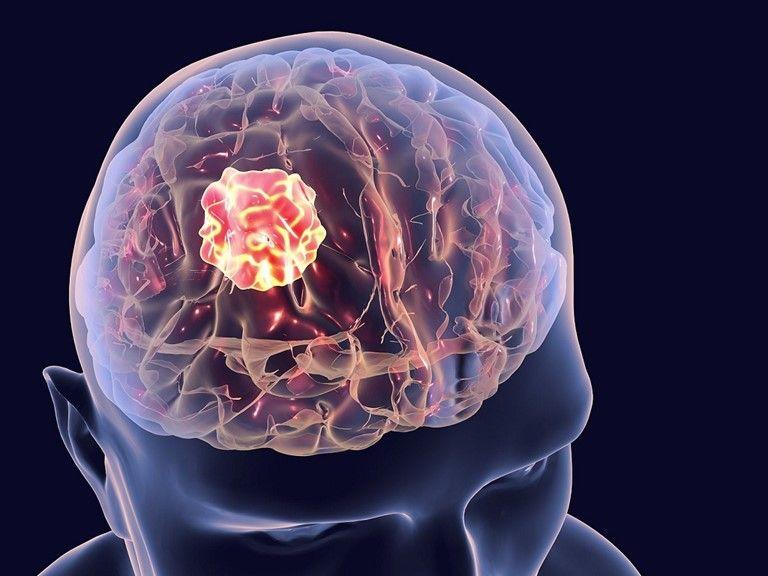 Khám u não gồm những hạng mục nào?