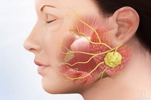 Các phương pháp điều trị khối u ác tính của tuyến mang tai là gì?