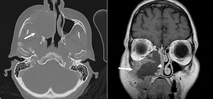 khối u ác tính của xoang hàm trên