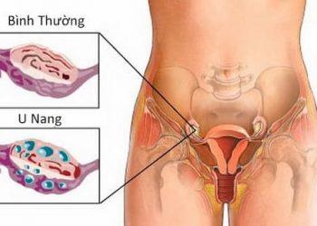 Khối u buồng trứng là gì? Nguyên nhân và cách chữa