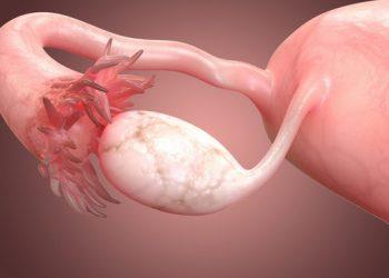 Khối u có nguồn gốc từ mô xơ buồng trứng là gì?