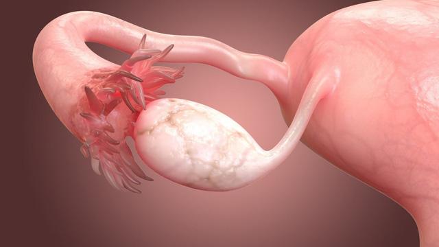 khối u có nguồn gốc từ mô xơ buồng trứng