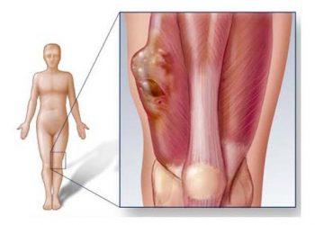 Khối u cơ vân ác tính của âm hộ là gì? Triệu chứng, cách chữa, chế độ ăn