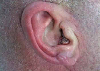 Khối u glomus là gì? Nguyên nhân gây ra, cách chữa trị hiệu quả