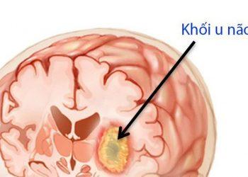 Khối u não là gì? Những kiến thức về chữa bệnh hiệu quả