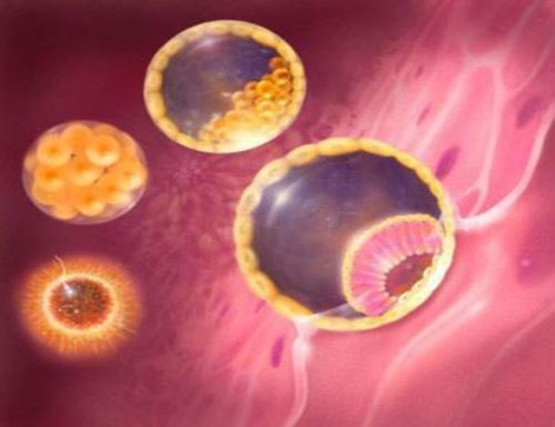 khối u nguyên bào nuôi