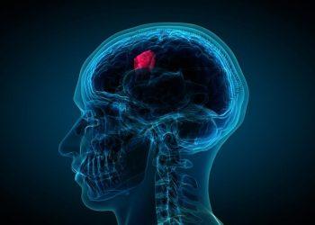 Khối u nội sọ là gì? Các nguyên nhân, dấu hiệu, điều trị