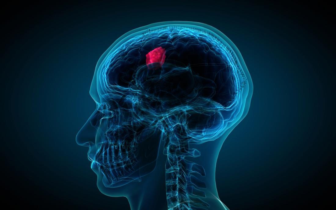 khối u nội sọ