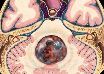 Khối u nội tủy nguyên phát là gì? Nguyên nhân, các triệu chứng của bệnh