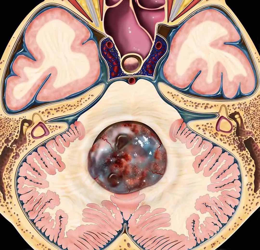 khối u nội tủy nguyên phát