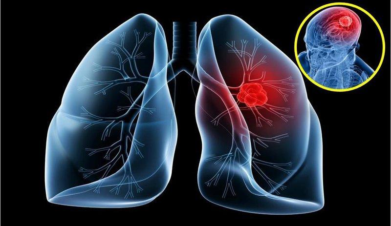 khối u phổi
