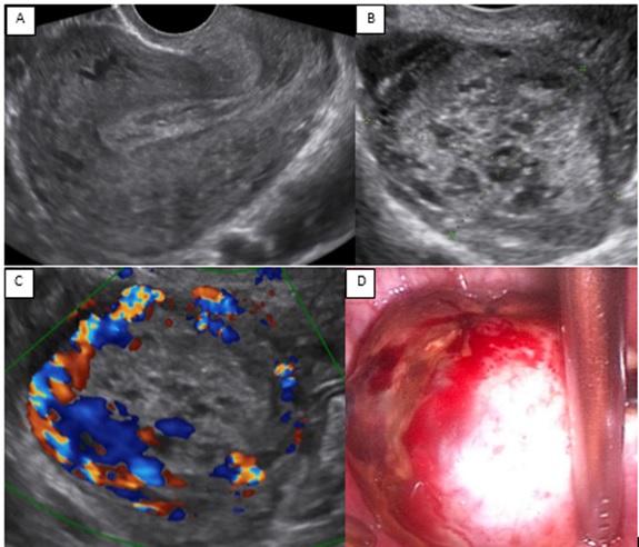 Làm thế nào để chẩn đoán phân biệt khối u túi noãn hoàng âm hộ?