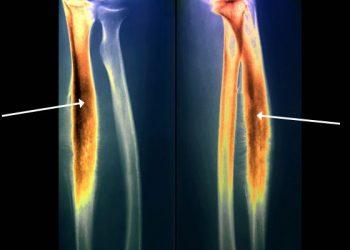 Sarcoma của Ewing là gì? Nguyên nhân, triệu chứng, dấu hiệu của bệnh