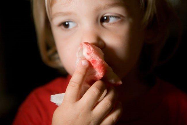 Làm thế nào để chẩn đoán phân biệt u máu mũi?
