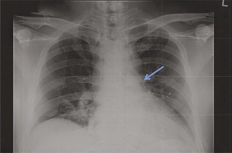 Làm thế nào để chẩn đoán phân biệt u nang trung thất và u?