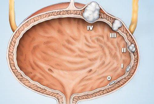Làm thế nào để chẩn đoán phân biệt với u trong biểu mô âm đạo?
