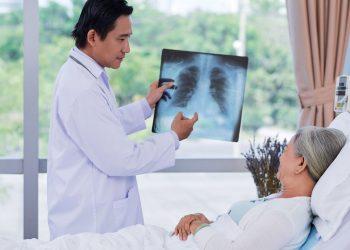 Bệnh viêm phổi giả phổi là gì? Những điều bạn chưa rõ