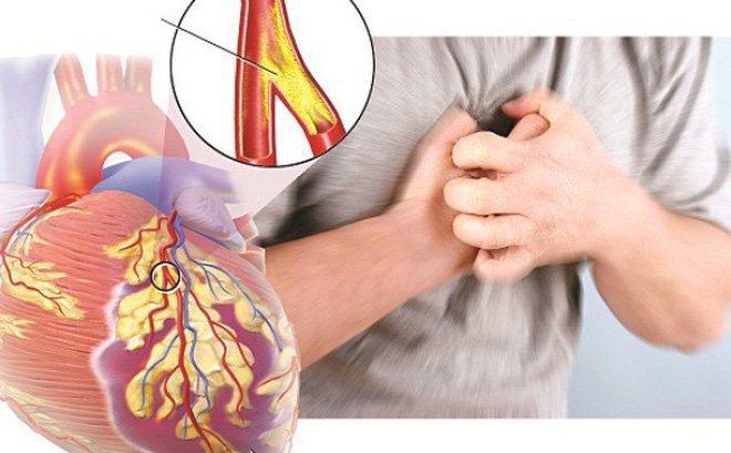 Làm thế nào để ngăn ngừa chứng phình động mạch vành?