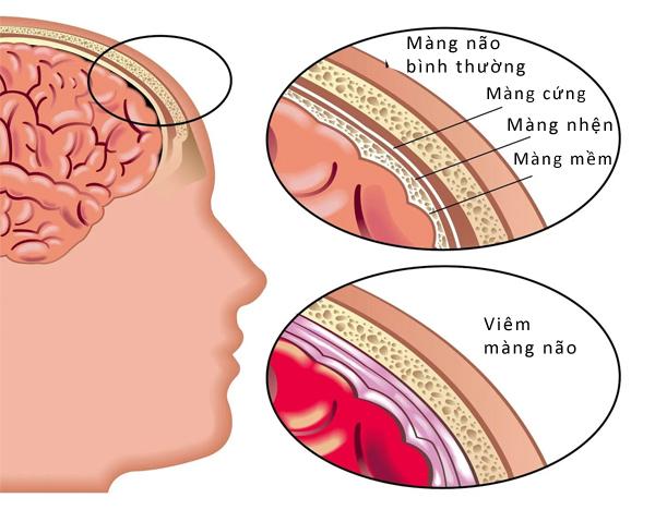 Làm thế nào để ngăn ngừa di căn màng não?