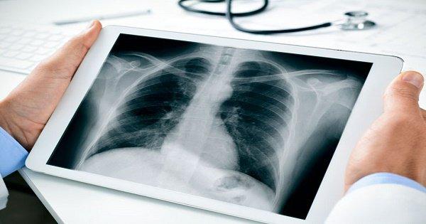 Các phương pháp điều trị di căn màng ngoài tim là gì?