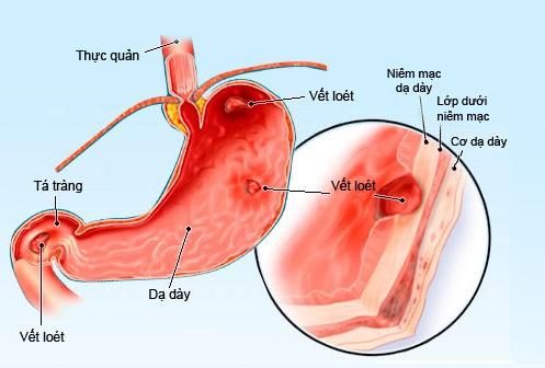 Làm thế nào để ngăn ngừa hamartoma cơ trơn?