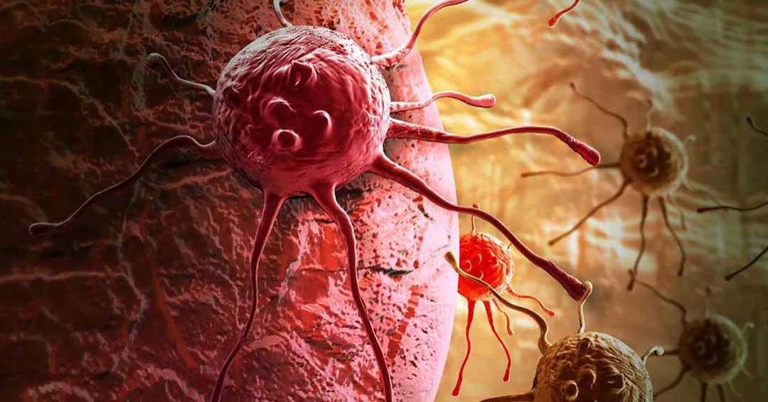 Làm thế nào để ngăn ngừa khối u desmoid?