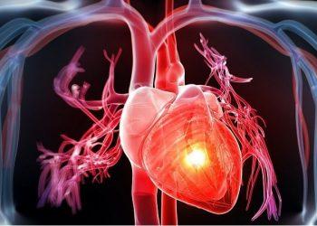U cơ tim nguyên phát là gì? Tổng quan chung về bệnh