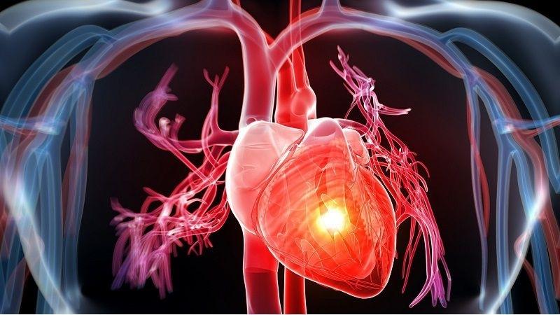 Làm thế nào để ngăn ngừa u cơ tim nguyên phát?