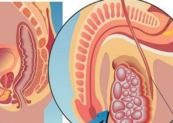 Ung thư biểu mô di căn của âm hộ là gì? Những nguyên nhân gây nên bệnh
