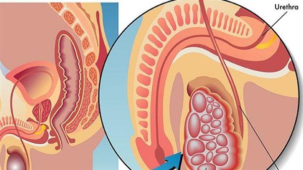 Làm thế nào để ngăn ngừa ung thư di căn âm hộ?