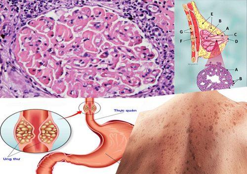 Làm thế nào để phân biệt và chẩn đoán ung thư biểu mô tuyến sinh dục ống?