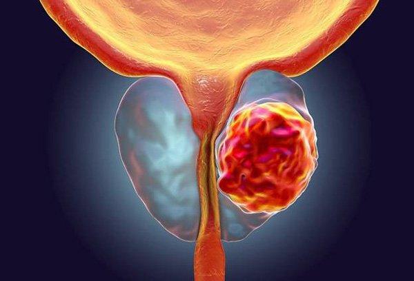 Làm thế nào để phòng ngừa ung thư biểu mô tuyến tiền đình?