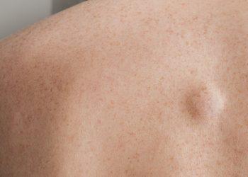 Lipoma là gì? Dấu hiệu nhận biết, các hạng mục kiểm tra, chế độ ăn