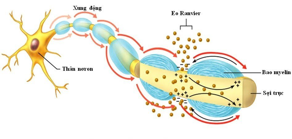 myxoma vỏ bọc thần kinh