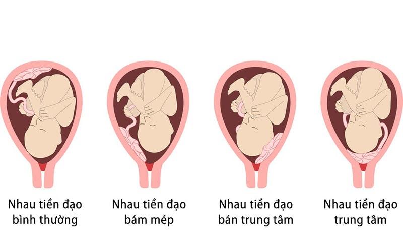 Nhau thai tiền đạo là gì