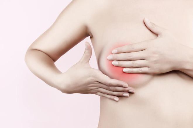 Những bệnh nào có thể gây ra u tuyến vú?